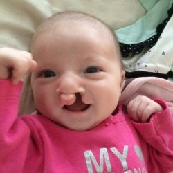 Born 9-25-13 Complete Bilateral Cleft Lip/Palate. Before the NAM