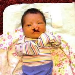 Francine 6 days old