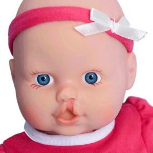 Cleft Lip Doll